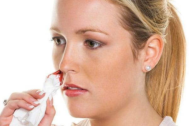 chảy mũi, dịch nhiều cũng có thể là dấu hiệu nhiễm trùng sau khi nâng mũi