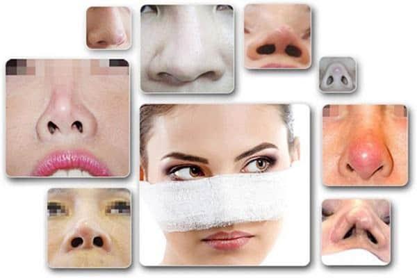 Những trường hợp cong lệch vẹo,... sau khi nâng mũi là dấu hiệu nhiễm trùng sau khi nâng mũi nghiêm trọng nhất, bạn không khắc phục kịp thời dễ dẫn đến bị hoại tử mũi.