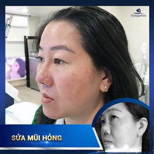 Khách hàng sau khi khắc phục mũi bị biến chứng