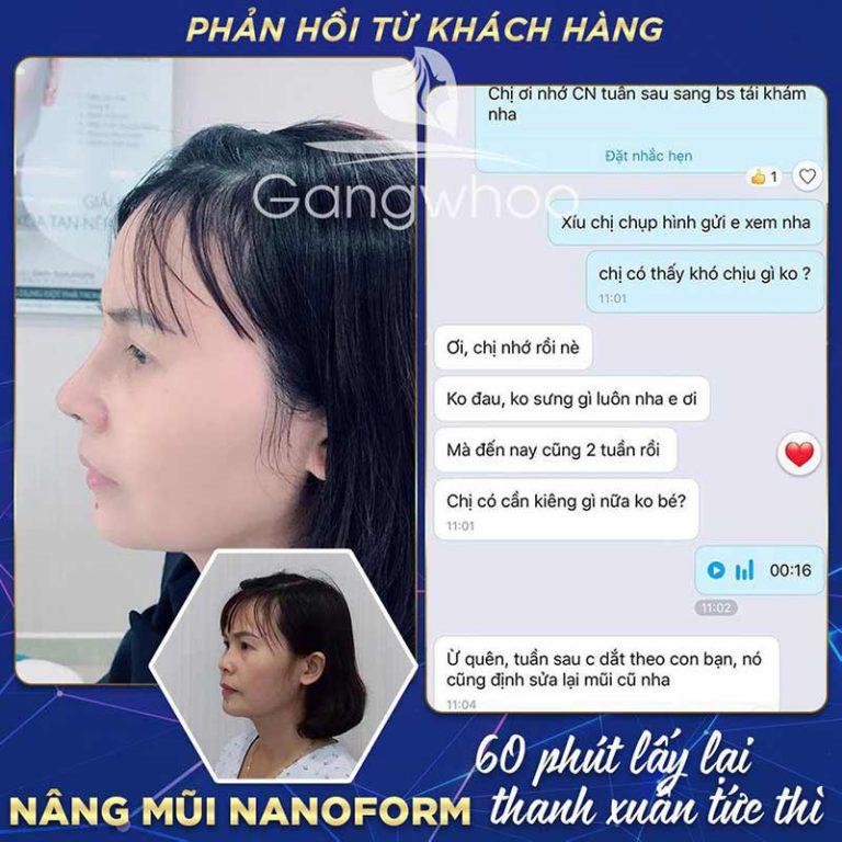 Feedback của khách hàng nâng mũi tại suamui.net
