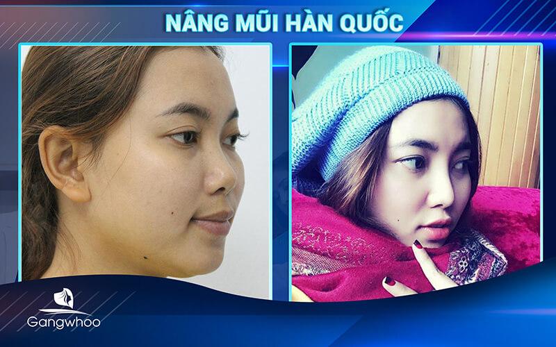 Khách hàng phẫu thuật nâng mũi tại suamui.net