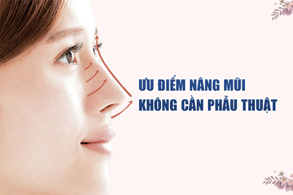 Ưu điểm của nâng mũi không cần phẫu thuật