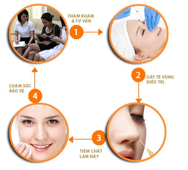 Quy trình nâng mũi không cần phẫu thuật