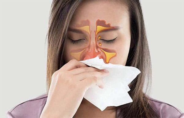 Viêm xoang làm đau đầu sau khi nâng mũi